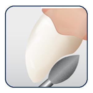 Oclusal & Lingual