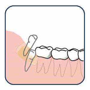 Odontosección